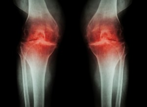 Osteoarthritis Knee ( OA Knee ) ( Film x-ray both knee with arthritis of knee joint : narrow knee joint space ) ( Medical and Science background )