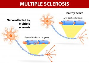 Multiple sclerosis is a specific immune system malfunction which causes damage to healthy nerves, disrupting the flow of nerve signals. immune system eats away at the protective sheath that covers nerves. Vector diagram