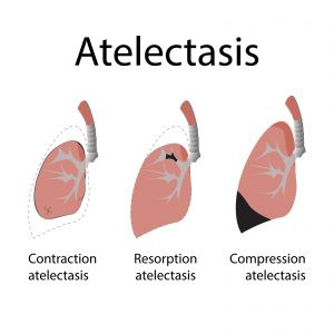 atelectasis. vector format illustration of lung disease