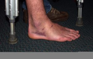 this is a picture of a man's badly bruised and sprained ankle.