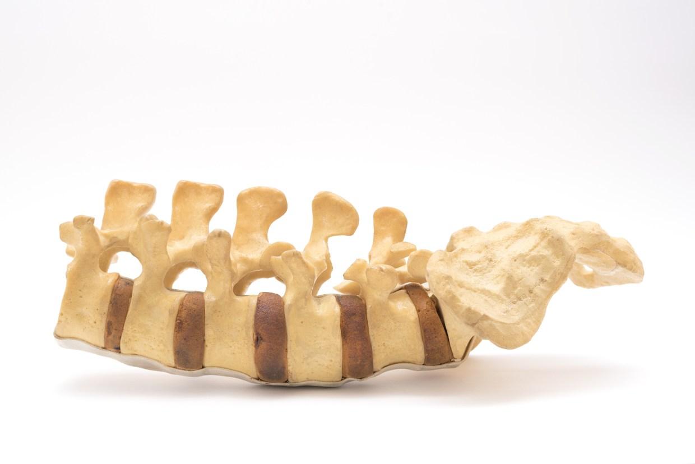 Lumbar Spine Model