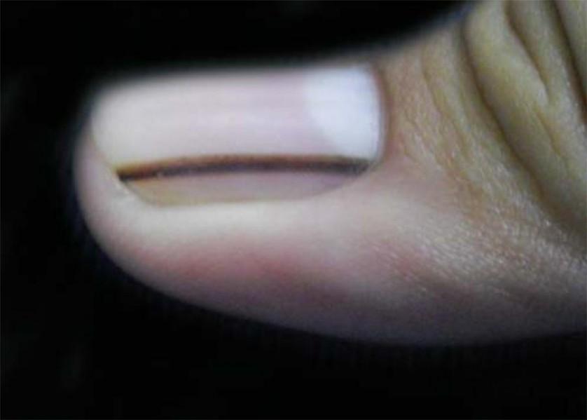 5 cose sulle unghie che viavvertono sulla vostra salute