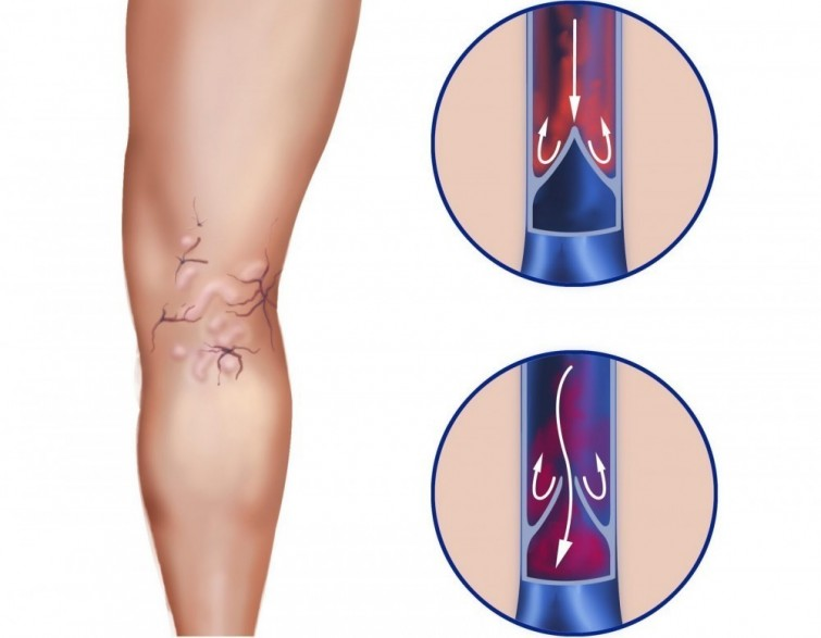 Perché si formano le vene varicose nelle gambe e come trattarle in tempo