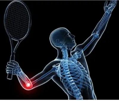 diagram of elbow pain