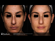 pico4_article2_acne-scar-curse