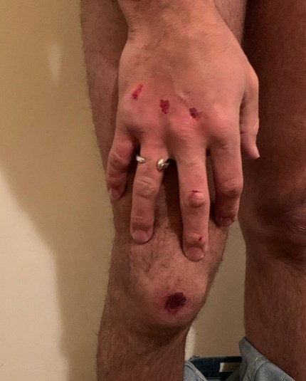 Taray Carey shows his injuries after the Uber journey