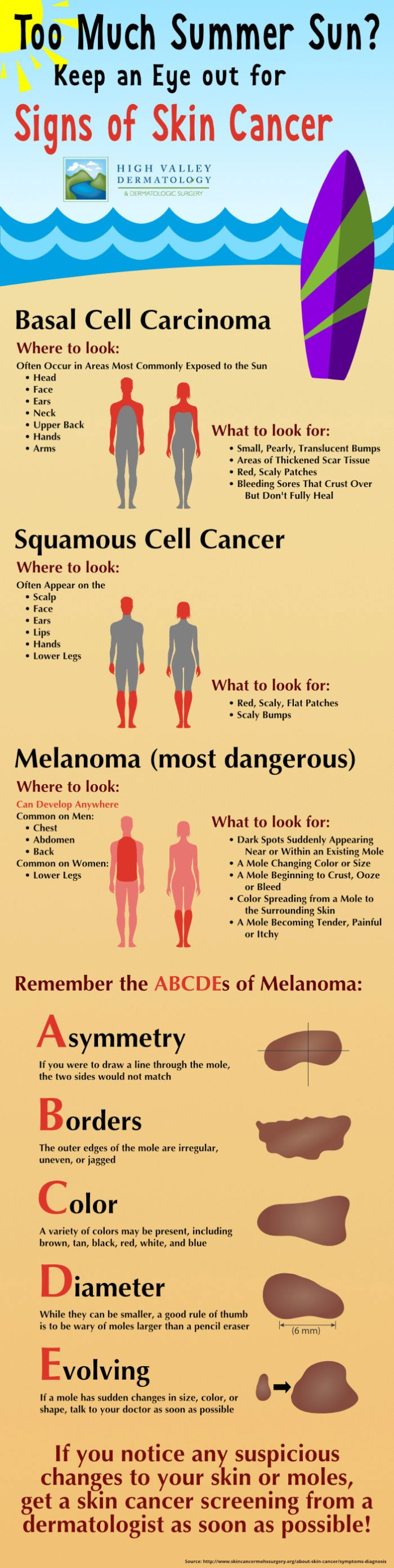 how-to-avoid-skin-cancer during summer--infographic