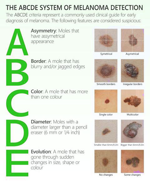 How to detect skin cancer and melanoma. Infographic.