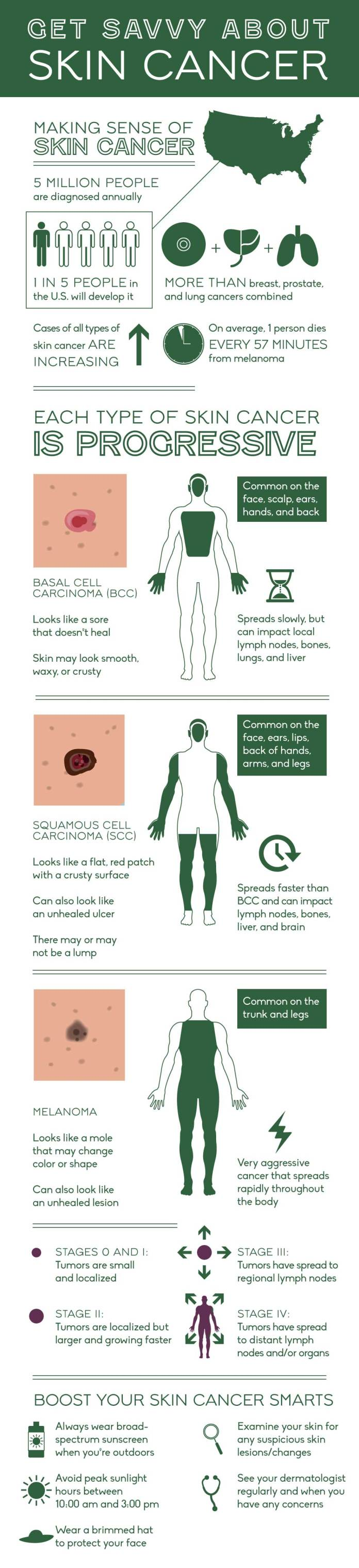 How to detect skin cancer on your skin. Full body infographic