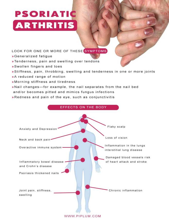 psoriatic-arthritis-affects-on-the-body-and-symptoms-infographic-poster-list-remedies