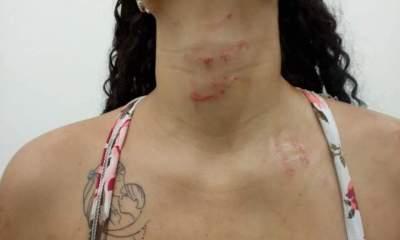 mulher agredida ponto de venda de drogas