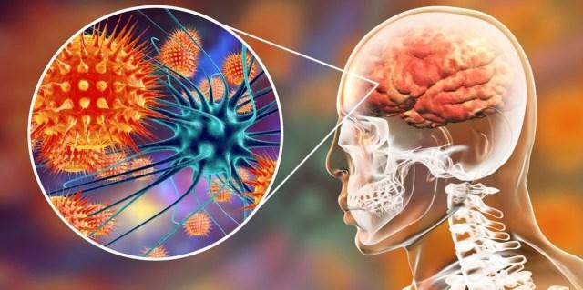 Uma foto reproduzindo o local afetado pela meningite