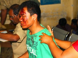 http://www.hindustantimes.com/india-news/manipuri-student-leader-attacked-in-bangalore-told-speak-in-kannada/article1-1275549.aspx