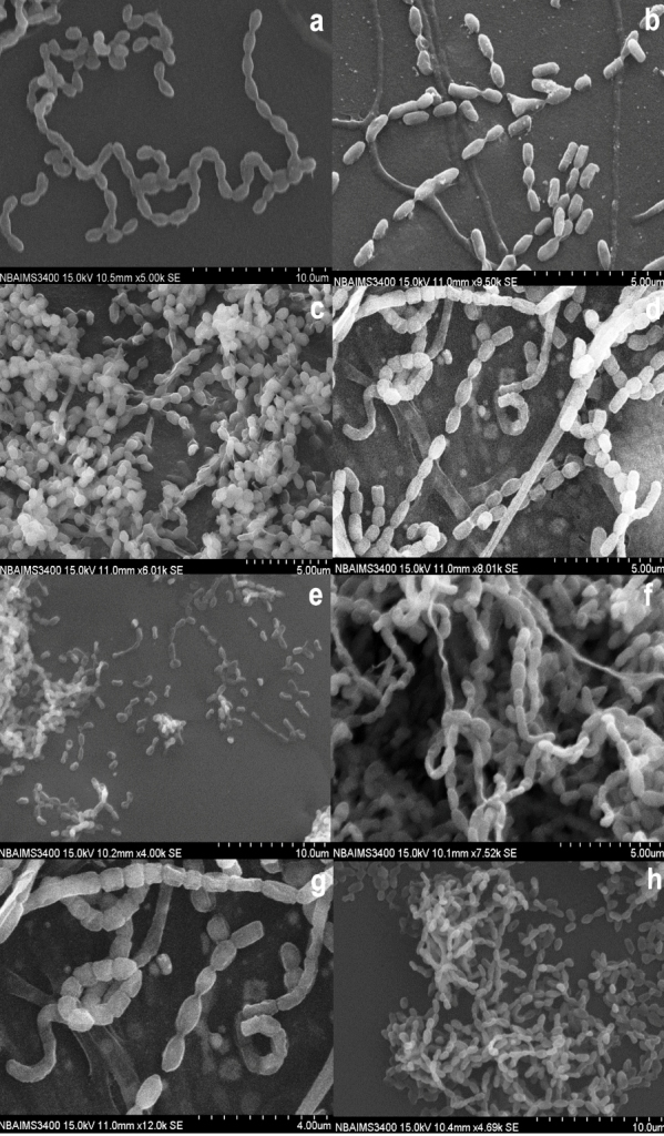 isolation of streptomyces The morphological and biochemical characteristics of 71 streptomyces spp  isolated from soil samples collected at different places of.