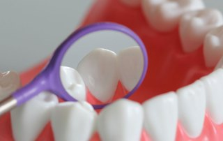 Zahnzusatzversicherung Vergleich: Worauf es wirklich ankommt erklärt Versicherungsberater Gerd Güssler
