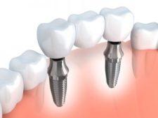 GOZ Zahnersatz - Gebühren sind für Zahnärzte - GOZ Zahnersatz