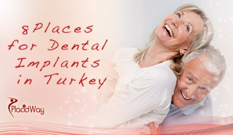 dental implants in turkey