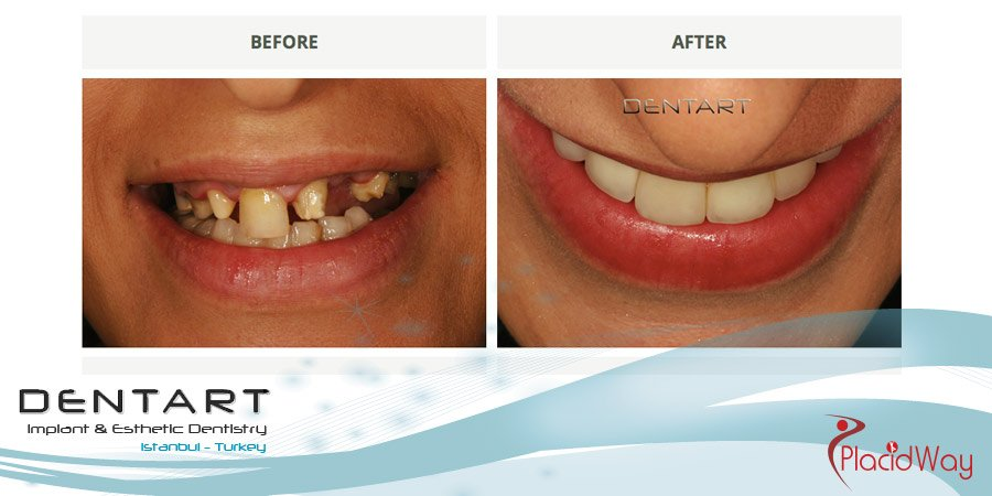 After Dental Implants in Turkey - Dentart Dental Clinic Istanbul