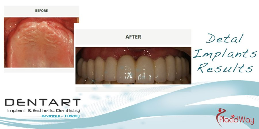 Before and After Photos Dental Implants