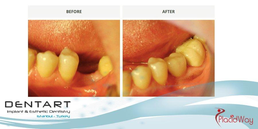 Dentistry Results in Turkey
