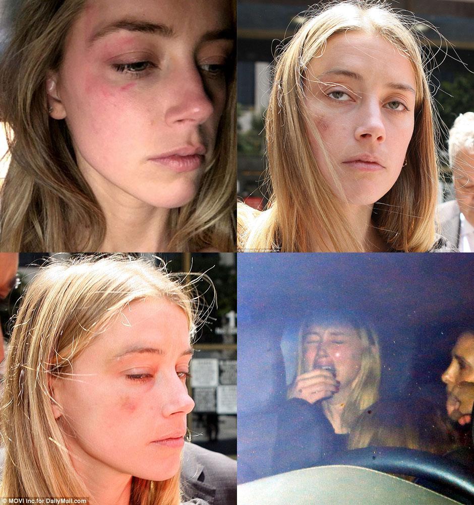 Amber Heard espancada Johnny Depp