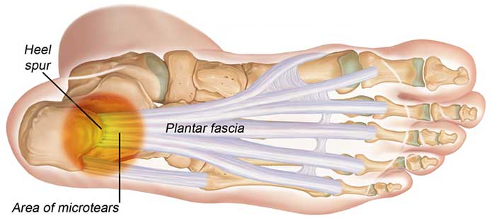 best running shoes for plantar fasciitis 2016