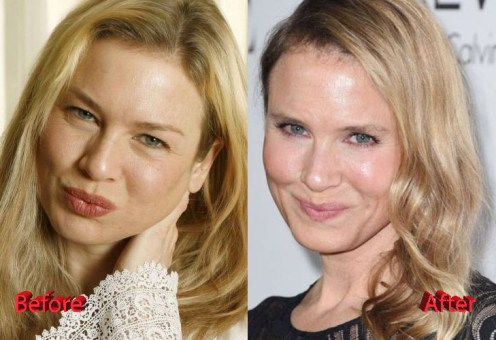 Image result for Renee Zellweger before and after