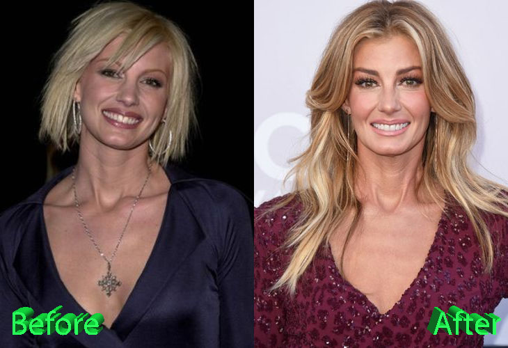 Faith Hill Facelift Gone Wrong