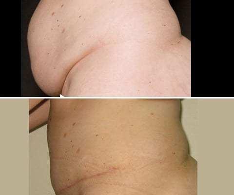 Plastie Abdominale après grossesse : de profil