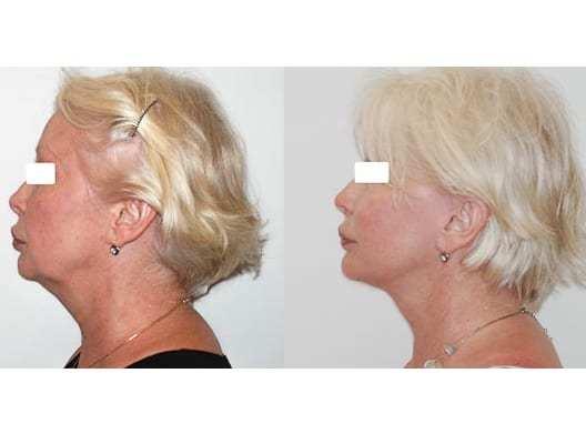 Lifting cervico-facial double plan. Vue de profil