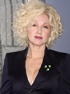 Cyndi Lauper plastic surgery before and after