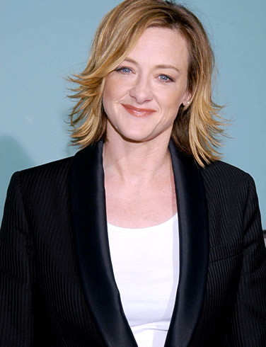 Joan Cusack Plastic Surgery before and after