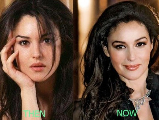 Monica Bellucci Plastic Surgery before and after