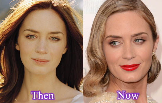 Emily Blunt Plastic Surgery Before After