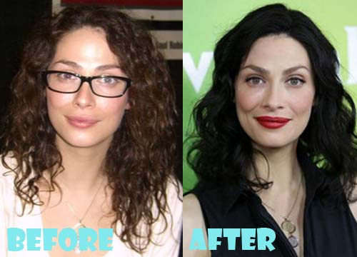 Joanne Kelly Plastic Surgery Before After