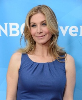 Elizabeth Mitchell Plastic Surgery Before After