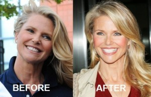 Christie Brinkley Plastic Surgery Before After