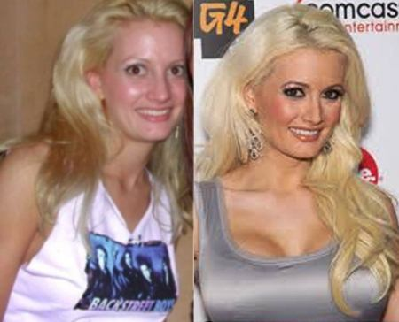 Holly Madison Plastic Surgery Before After