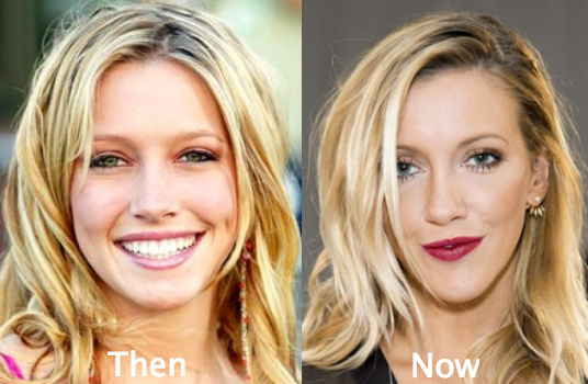 Katie Cassidy Plastic Surgery Before After