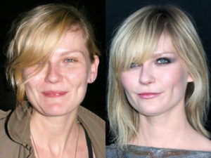 Kirsten Dunst Plastic Surgery Before After