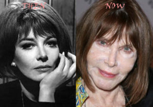 Lee Grant Plastic Surgery Before After