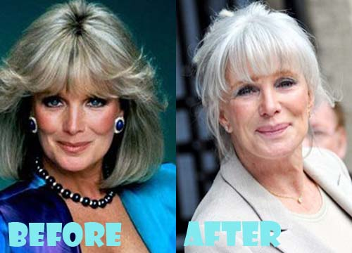 Linda Evans Plastic Surgery Before After