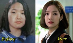 Park Min Young Plastic Surgery Before After