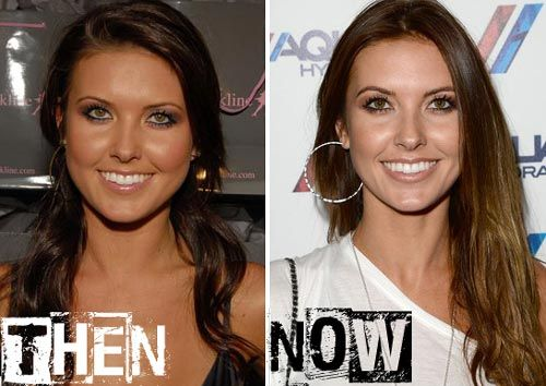 Audrina Patridge Plastic Surgery Before After