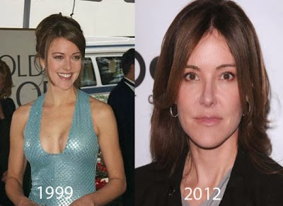 Christa Miller Plastic Surgery Before After