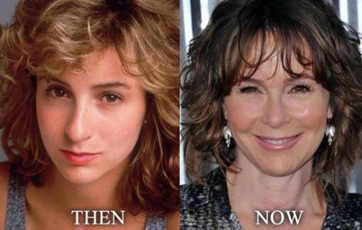 Jennifer Grey Plastic Surgery Before and After