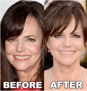 Sally Field Plastic Surgery Before and After