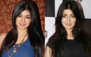 Ayesha Takia Plastic Surgery Before After