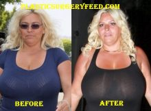 Beth Chapman Breast Implants