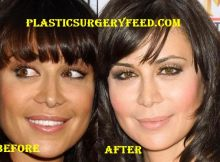 Catherine Bell Facelift